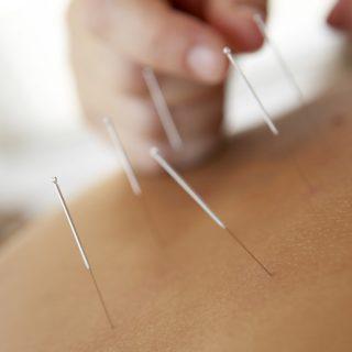 acupuntura-index